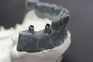 implantate bielefeld 1