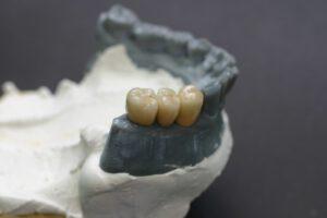 implantate bielefeld