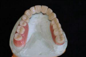 implantologie bielefeld 3
