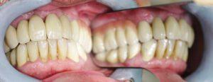 zahnimplantate bielefeld 3