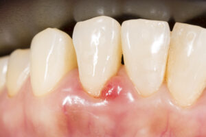 Parodontologie in Bielefeld - 1