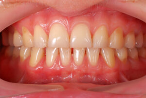 Parodontologie Zahnarzt in Bielefeld