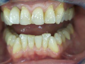 Hochwertige Zahnimplantate Bielefeld