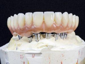 Zahnimplantate in Bielefeld