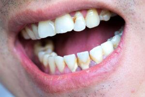 Parodontologie Zahnarzt Bielefeld