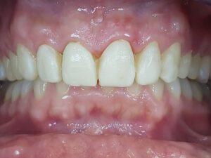 Zahnarztpraxis für Veneers in Bielefeld