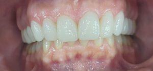 Zahnarzt für Veneers in Bielefeld